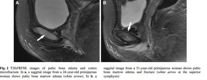 osso-pubico-dolore-pubalgia-gravidanza-post-partum-osteopatia-cura-osteopata-Bassano-Rosà-Castelfranco-Treviso-Cittadella-Padova