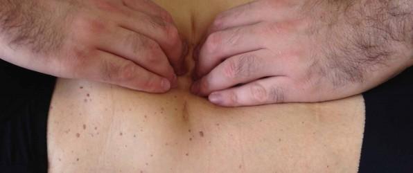 L'impatto delle cicatrici nella salute: l'osteopatia come cura
