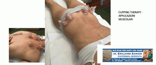 Cosa sono queste strane coppette che si usano in fisioterapia per curare i dolori al collo, alla schiena e nei colpi di frusta?